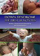 VHS: Down Syndrome - The First 18 Months